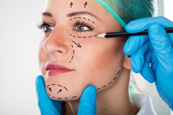 What Is Life Like After Rhinoplasty – Get the correct information!!